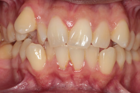 Crowding of the teeth Before